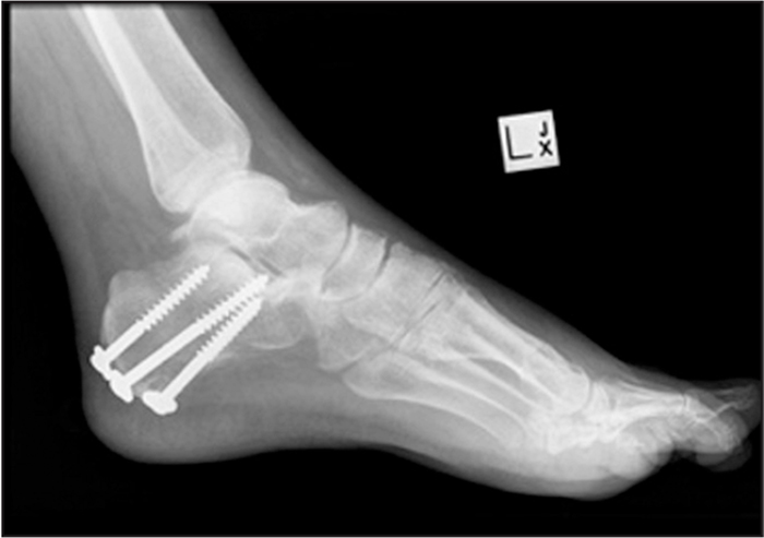 Calcaneal osteotomy with 3 screws.
