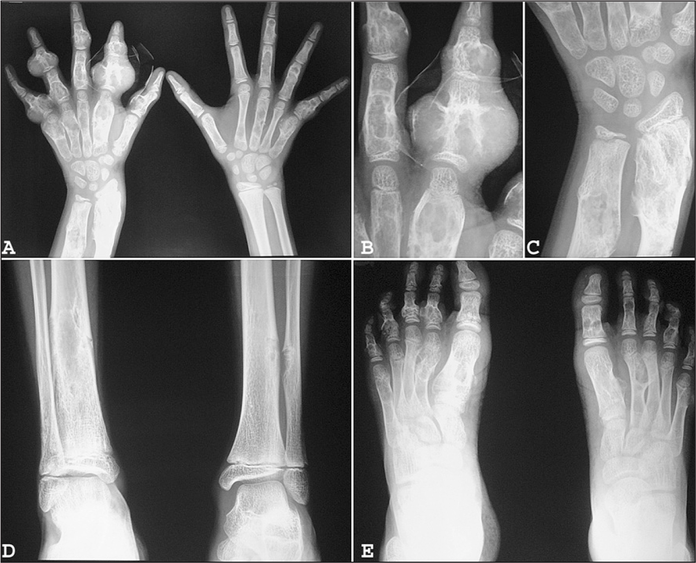 Anteroposterior radiographs of both hands (A), fingers (B), wrist (C), leg (D), and feet (E) showing multiple well-defined, expansile lytic lesions involving the metacarpals, metatarsals, phalanges, distal end of the radius and ulna, and lower end of the tibia/fibula. No matrix mineralization is seen.