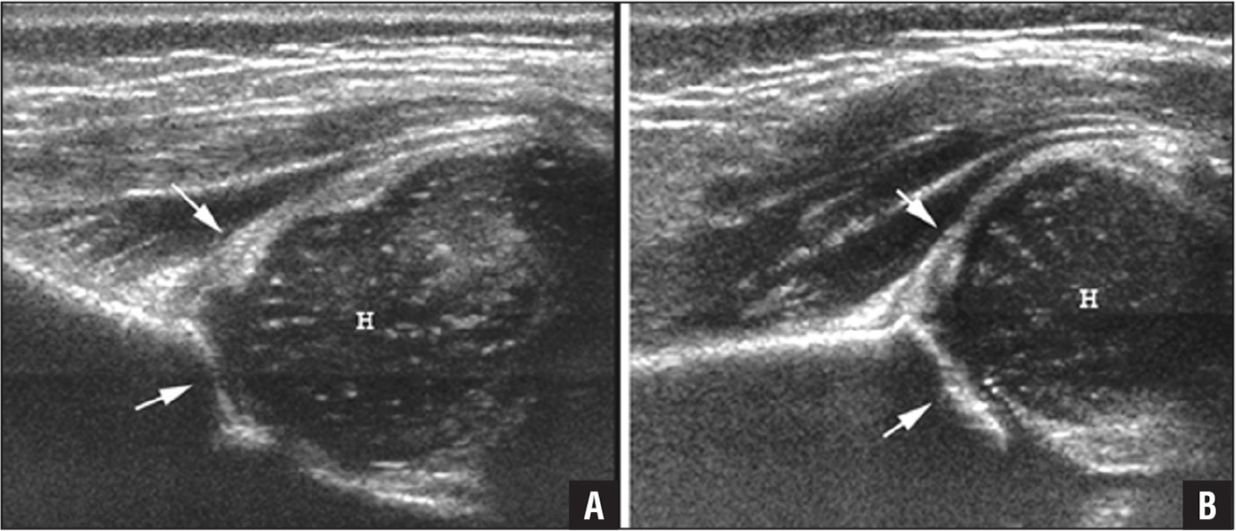 Diagnostic dynamic ultrasound scan (coronal view) of a dysplastic acetabulum showing a posteriorly displaced femoral head (H) with a smaller and less distinct border than normal. The acetabulum is dysplastic (arrows) and lacks its normal sharp, V-shaped configuration (A). Diagnostic dynamic ultrasound scan (coronal view) of a normal acetabulum for comparison showing a sharp, intact, V-shaped acetabulum (arrows). The femoral head (H) is well defined and in the normal position (B).