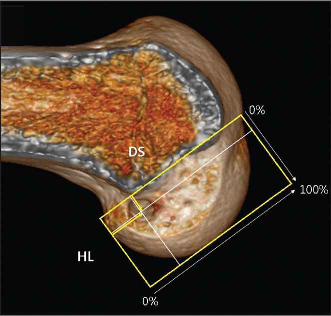 The total sagittal diameter of the lateral femoral condyle was measured along the Blumensaat line (DS=deep-to-shallow distance). The height of the intercondylar notch was measured from the Blumensaat line to a line tangent to the distal subchondral bone contour of the condyle (HL=high-to-low distance). The location of the tunnel was quantified from the center of the tunnel to the deepest subchondral bone contour. The Blumensaat line is expressed as percentages of the DS and HL.