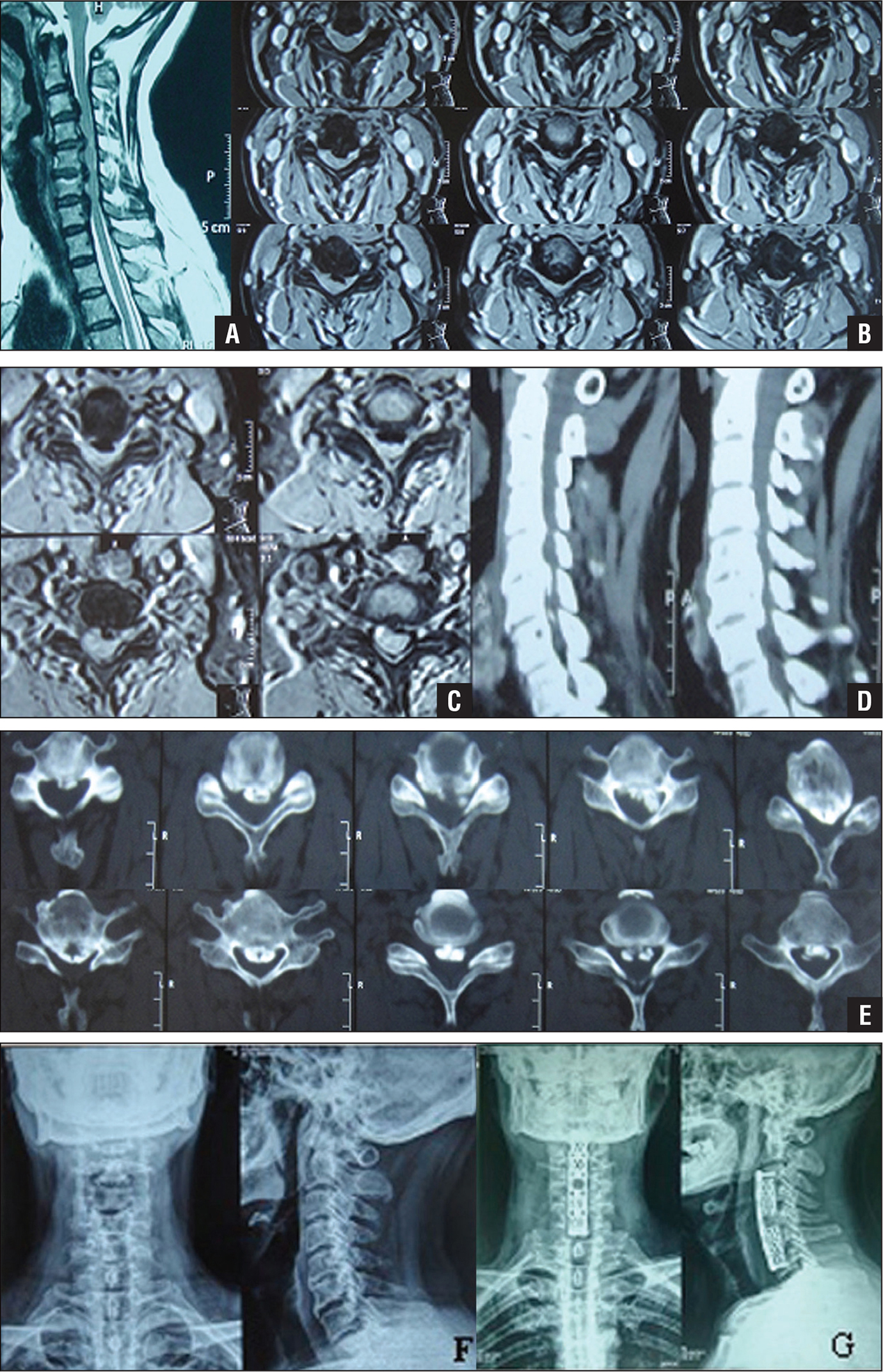 Radiologic images of a 53-year-old man with spinal cord compression as a result of disk hernia and ossification of the posterior longitudinal ligament with 4 segments treated with anterior segmental subtotal corpectomy and reconstruction with a titanium cage. The Japanese Orthopedic Association score improved from 8 preoperatively to 15 postoperatively. Sagittal magnetic resonance imaging of the cervical spine showing grade 3 compression as a result of ossification of the posterior longitudinal ligament and maximum compression at the disk level (A). Axial magnetic resonance imaging scanograms showing disk hernias at C3–C4 and C4–C5 (B) and C5–C6 and C6–C7 (C). Sagittal 3-dimensional computed tomography scans showing segmental-type ossification of the posterior longitudinal ligament from C3 to C7 (D). Axial computed tomography scanograms showing ossified ligaments with different shapes (E). Preoperative (F) and postoperative (G) radiographs showing anterior segmental subtotal corpectomy and reconstruction with a titanium cage.