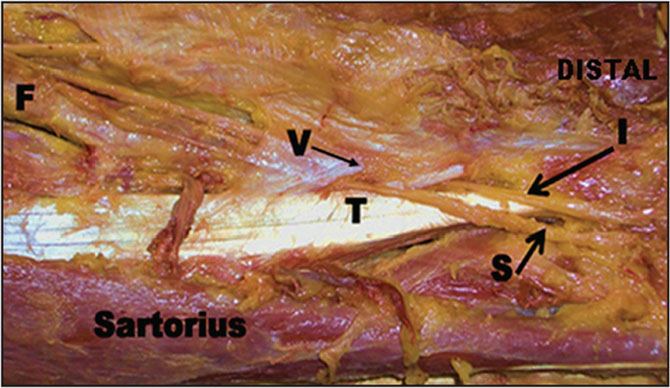 Saphenous and Infrapatellar Nerves at the Adductor Canal: Anatomy ...