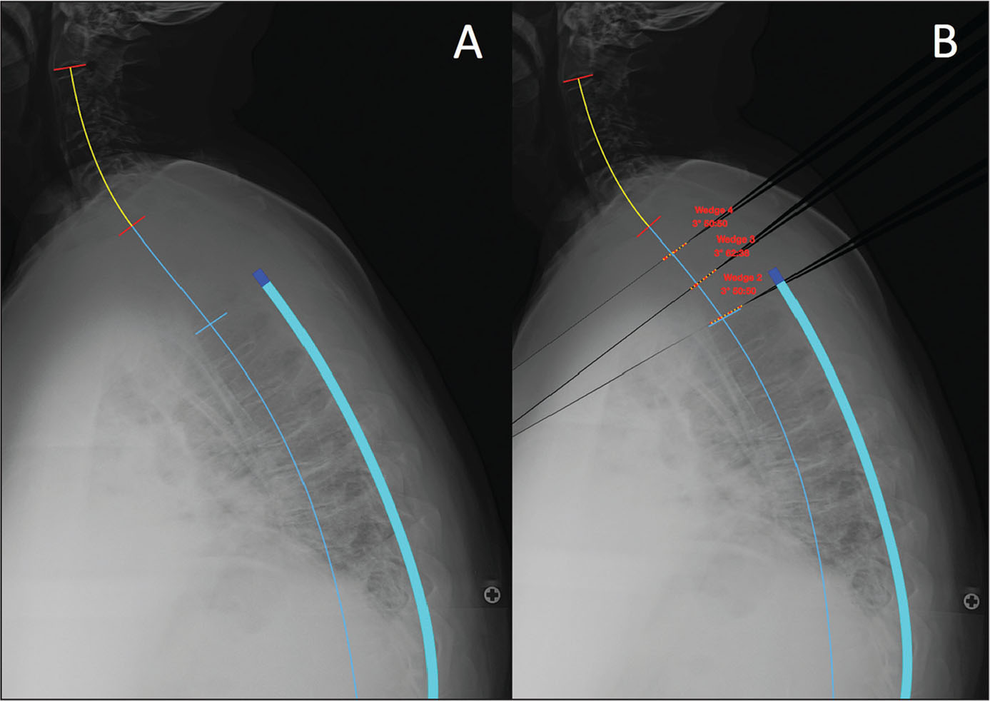 Planning for reciprocal kyphosis. Preoperative radiograph (A). Surgical planning imaging with 3 wedges, simulating 3° of reciprocal kyphosis per disk level above the fusion construct (B).