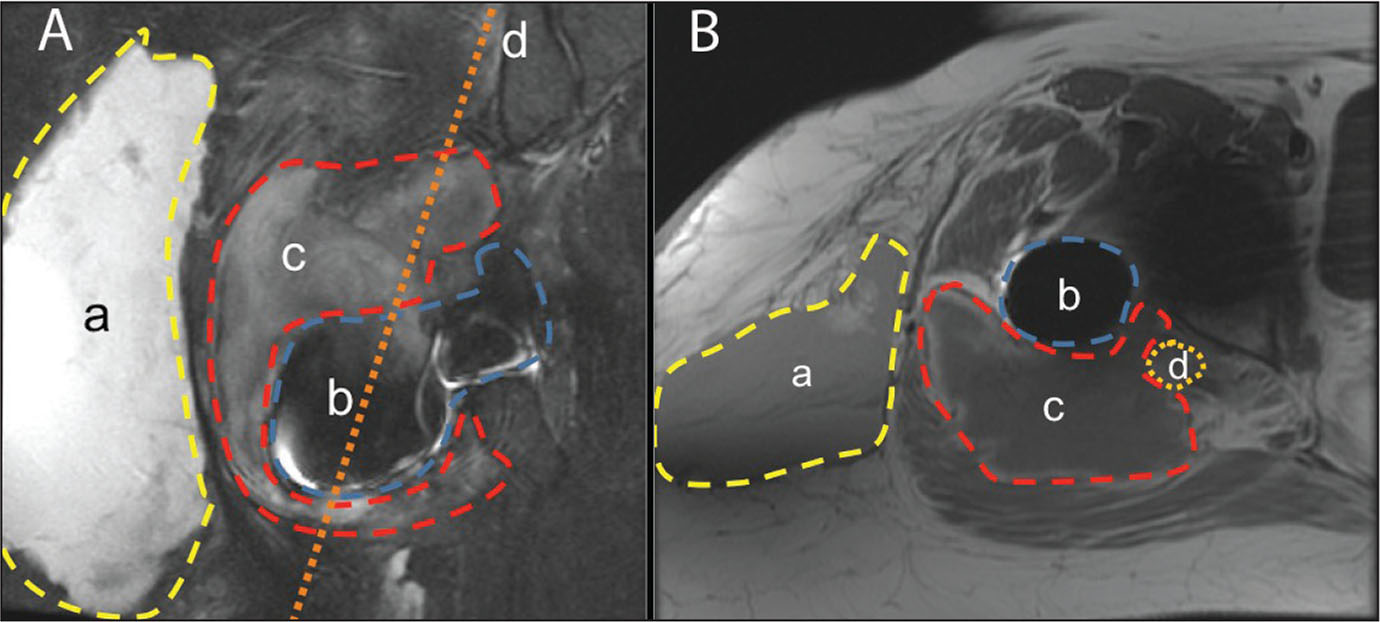 Coronal (A) and axial (B) magnetic resonance images of the acetabular implant showing the superficial hematoma (a), the acetabular implant (b), the deep hematoma (c), and the sciatic nerve (d).