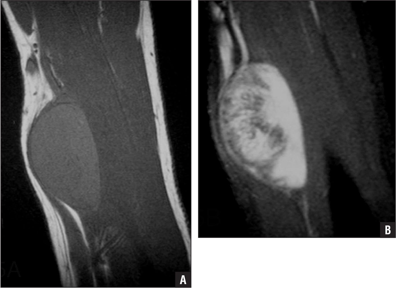 Preoperative sagittal T1-weighted (A) and T2-weighted (B) magnetic resonance images of a schwannoma. A nerve can be seen entering and exiting the mass.