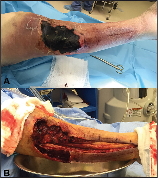 Necrotic eschar and infected hematoma (A). The leg after 2-incision fasciotomy with excision and debridement of nonviable and infected tissue (B).