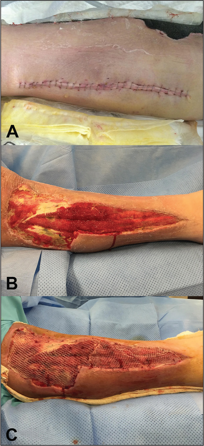 Delayed primary closure of the medial wound (A). Lateral wound granulation tissue after removal of wound vacuum and treatment with wet to dry dressings (B). Coverage of the lateral wound with placement of a split-thickness skin graft (C).