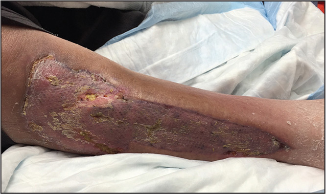 Mature split-thickness skin graft to the lateral wound.