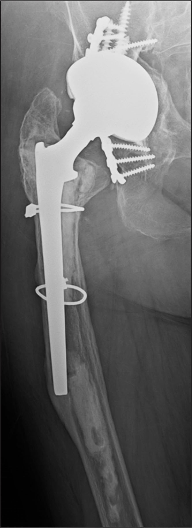 Loose cemented Omnifit (Osteonics, Mahwah, New Jersey) stem after cement-in-cement revision total hip arthroplasty 5 years earlier.