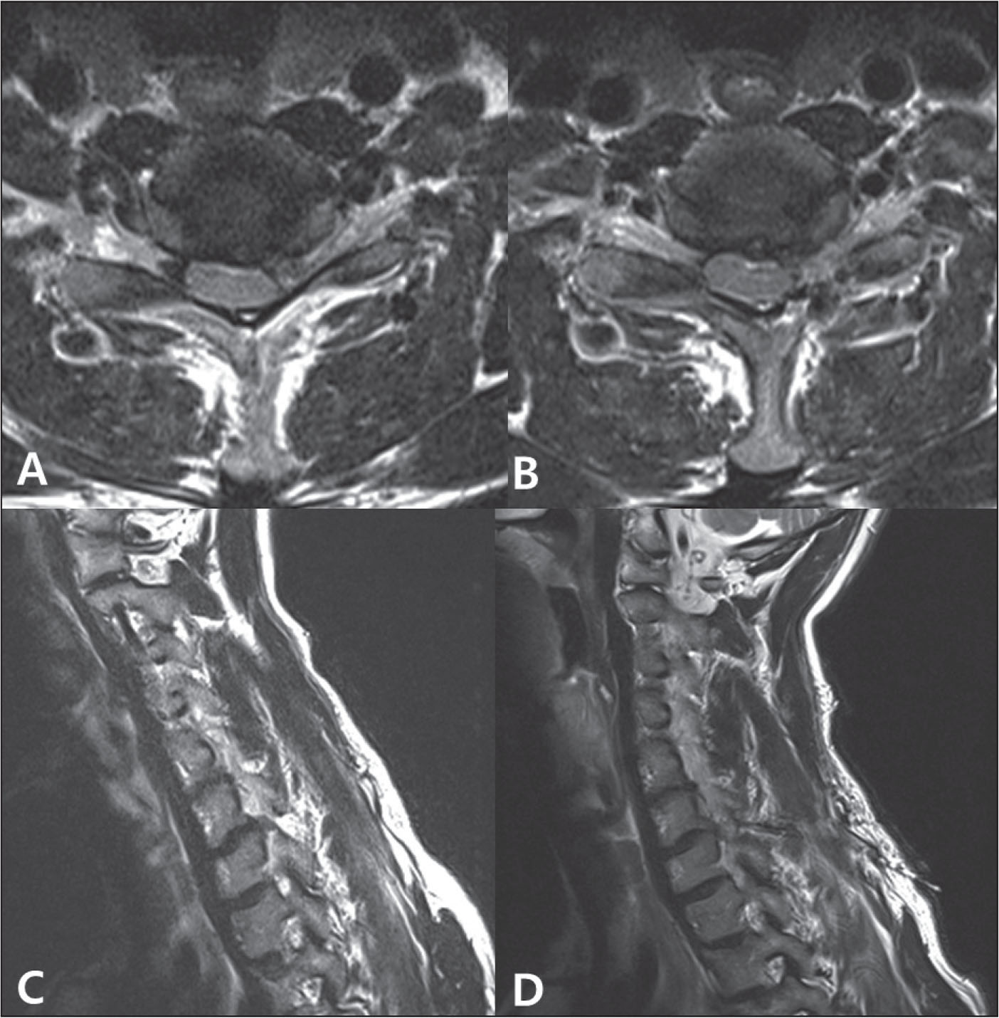 Preoperative axial (A) and sagittal (C) magnetic resonance images. At the left C6–C7 level, the soft disk protrudes laterally. Postoperative axial (B) and sagittal (D) magnetic resonance images show that the protruded disk was removed.
