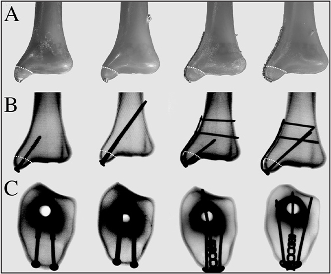 Photographs (A), anteroposterior radiographs (B), and axial radiographs (C) of the horizontal medial malleolus osteotomy in a synthetic distal tibia with each of the 4 fixation constructs (from left to right): parallel unicortical cancellous screw construct, bicortical screw construct, proximal T-plate construct, and distal bicortical T-plate construct. White lines indicate osteotomy cuts.