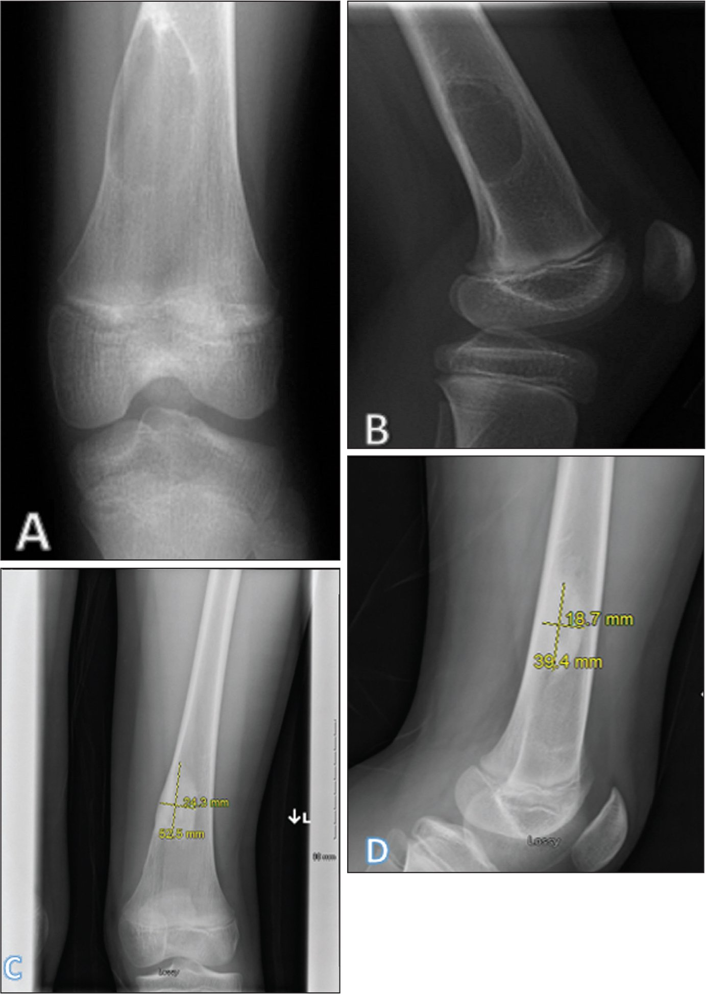 Preoperative anteroposterior (A) and lateral (B) radiographs of a distal femoral metaphyseal unicameral bone cyst. Ten months later, the anteroposterior (C) and lateral (D) radiographs of the lesion show no recurrence. Measures of the healed cyst consist of the maximum width and height.
