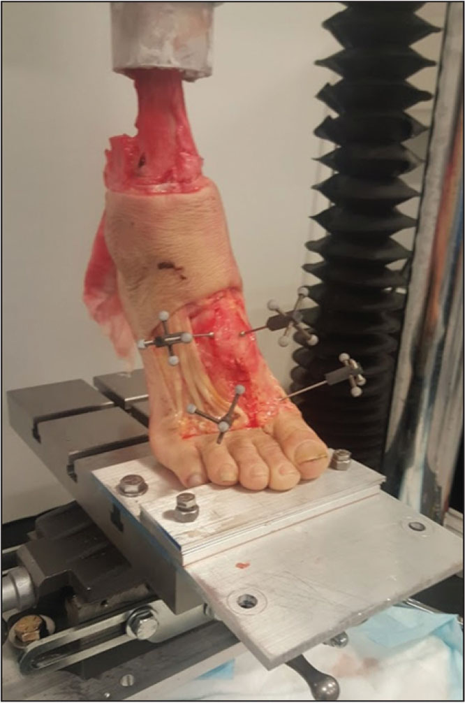 Photograph showing the physical setup for the in vitro biomechanical testing. The ankle was fused at 30° of plantarflexion to simulate the push-off portion of the stance phase of the gait cycle, which simulates the application of high stresses to the midfoot ligaments during ambulation. Insertion points of bone marker clusters are not representative of the locations that were used to measure diastasis between bones.