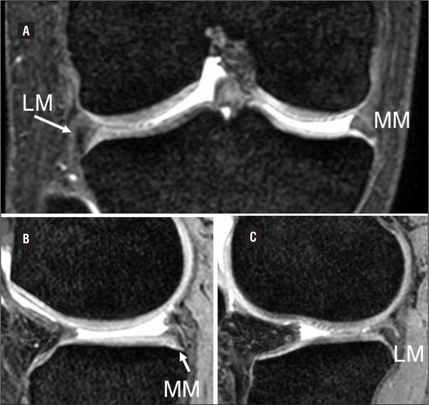 T2-star–weighted magnetic resonance images of the right knee. Coronal view of the right knee (A), and sagittal view of the medial (B) and lateral (C) compartments. A contralateral magnetic resonance image showed meniscal abnormalities similar to those of the left knee: hypoplastic medial and lateral menisci with partial fusion with tibial cartilage (arrow). Abbreviations: LM, lateral meniscus; MM, medial meniscus.