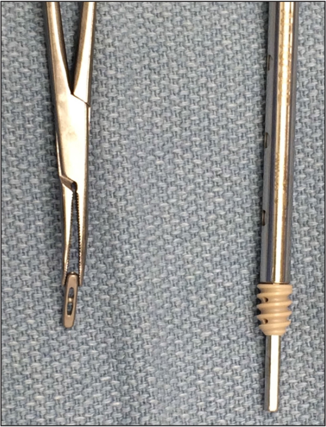 Photograph showing the cortical button (left) and the supplementary Biotenodesis interference screw (right) used for tendon reinsertion (Arthrex Inc, Naples, Florida).