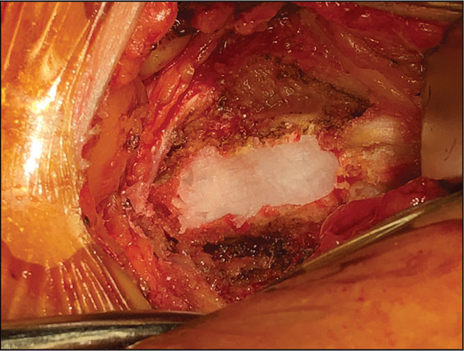 Defect in the iliac crest filled with bone wax.