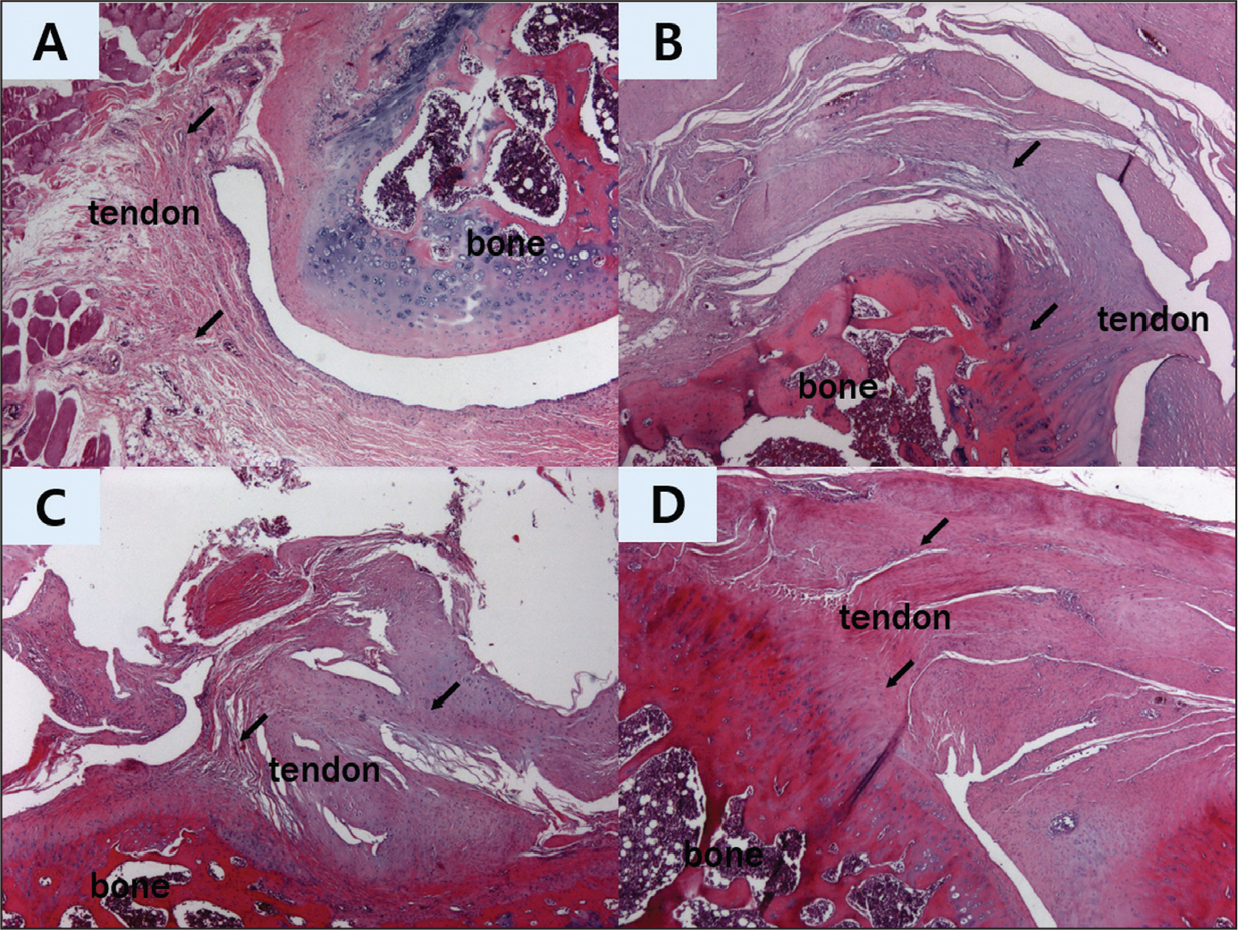 Results of hematoxylin-eosin staining (original magnification ×50) of the supraspinatus tendon repair site at 6 and 12 weeks after repair. Supraspinatus repair only at 6 weeks (group 1—control) (A). Supraspinatus repair only at 12 weeks (group 1) (B). Supraspinatus repair with alginate sheet at 6 weeks (group 2) (C). Supraspinatus repair with alginate sheet at 12 weeks (group 2) (D). In group 2, the ground substance and collagen (arrows) were increased compared with those in group 1. In group 2, tendon-to-bone density (arrows) were increased compared with that in group 1.