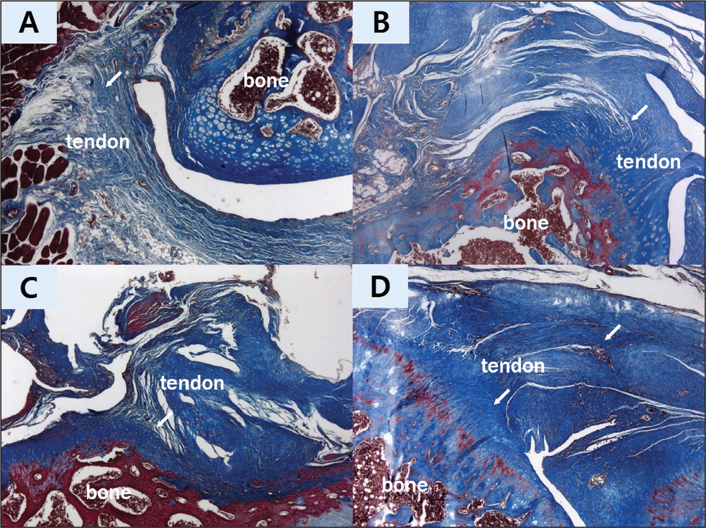 Results of Masson's trichrome staining (original magnification ×50) of the supraspinatus tendon repair site at 6 and 12 weeks after repair. Changes in collagen fiber arrangements. Supraspinatus repair only at 6 weeks (group 1—control) (A). Supraspinatus repair only at 12 weeks (group 1) (B). Supraspinatus repair with alginate sheet at 6 weeks (group 2) (C). Supraspinatus repair with alginate sheet at 12 weeks (group 2) (D). In group 1, the collagen fibers (arrows) were poorly organized and fiber continuity with the bone had not yet been established. In group 2, a more organized structure with a higher collagen fiber (arrows) density was observed compared with group 1. Furthermore, more collagen fibers bridged the interface, revealing good tendon-to-bone (arrows) integration, and longitudinally oriented collagen fibers were also visible.