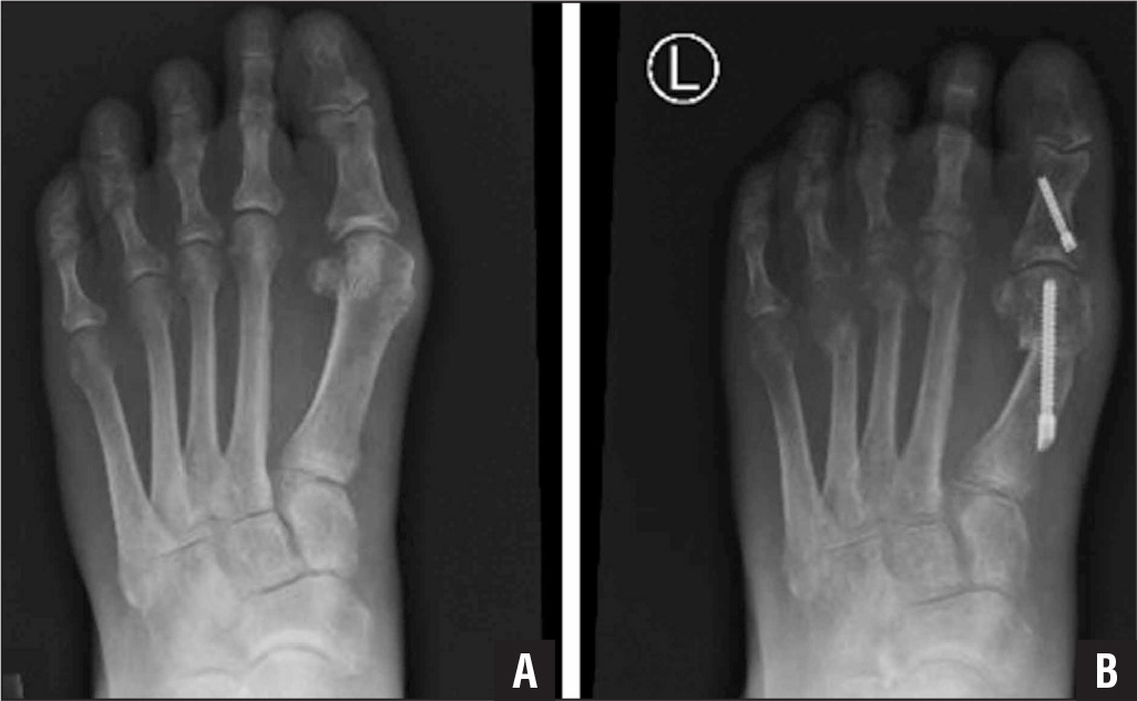 Preoperative weight-bearing anteroposterior radiograph showing the particularly long second metatarsal and the bunion deformity of a 42-year-old woman with severe second and third metatarsalgia but no bunion pain (A). Postoperative weight-bearing anteroposterior radiograph showing the shortening of the second, third, and fourth metatarsals following percutaneous distal osteotomies. The patient also underwent a bunionectomy to reduce the risk of recurrence of metatarsalgia (B).