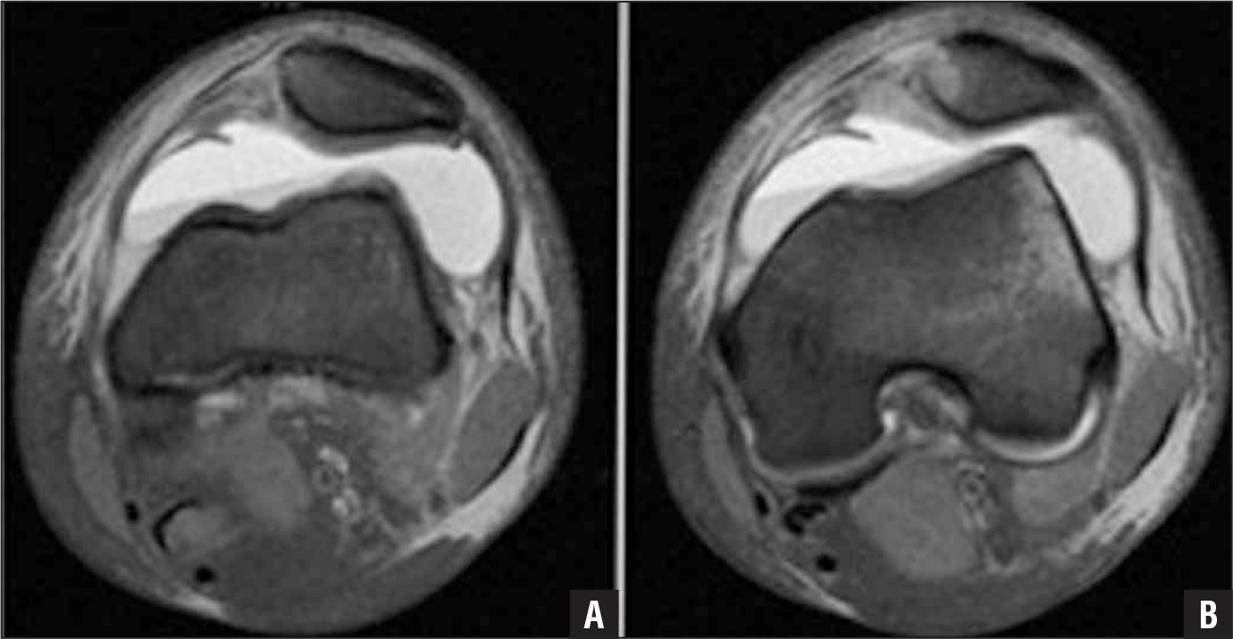 T2-weighted axial magnetic resonance imaging. A nondisplaced cortical disruption at the medial patella margin with adjacent edema and partial disruption of the medial patellofemoral ligament (A). The patellofemoral joint 5 days after injury showing significant joint effusion and bony edema of the lateral femoral condyle and the medial aspect of the patella (B).