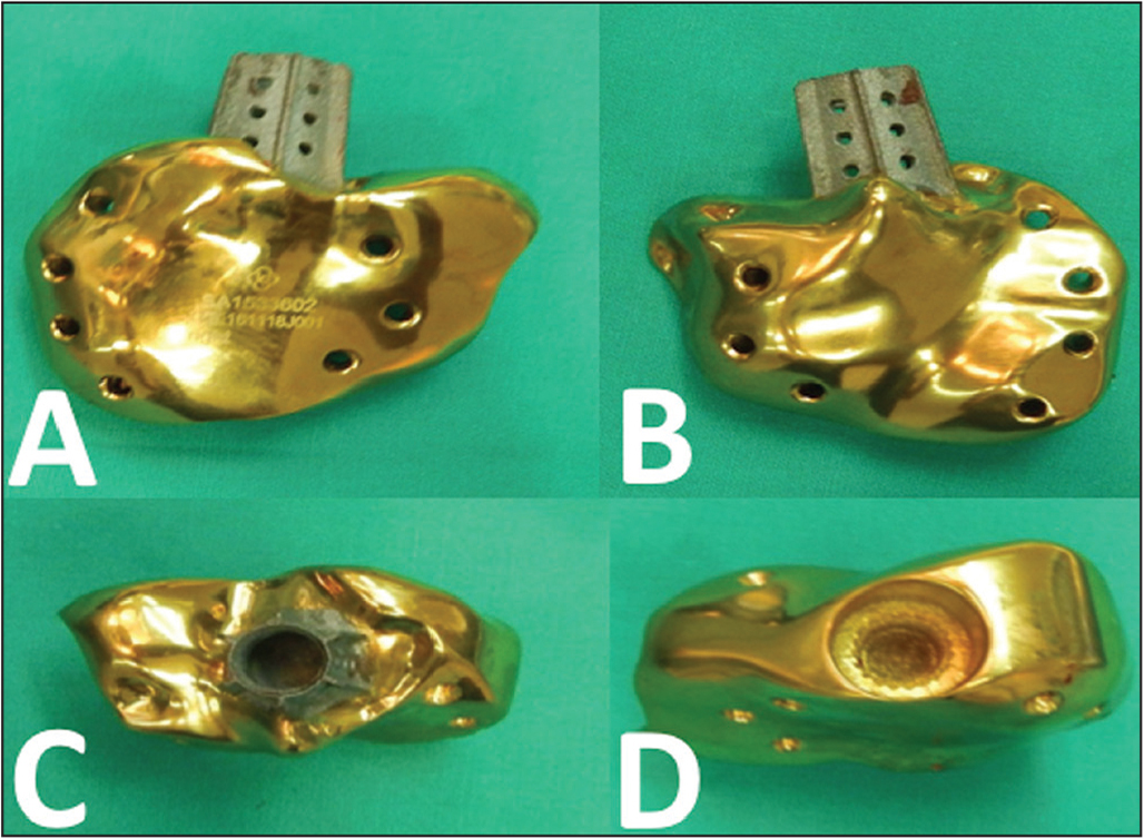 Lateral (A), medial (B), superior (C), and inferior (D) aspects of the custom-made 3-dimensional printed calcaneus implant.