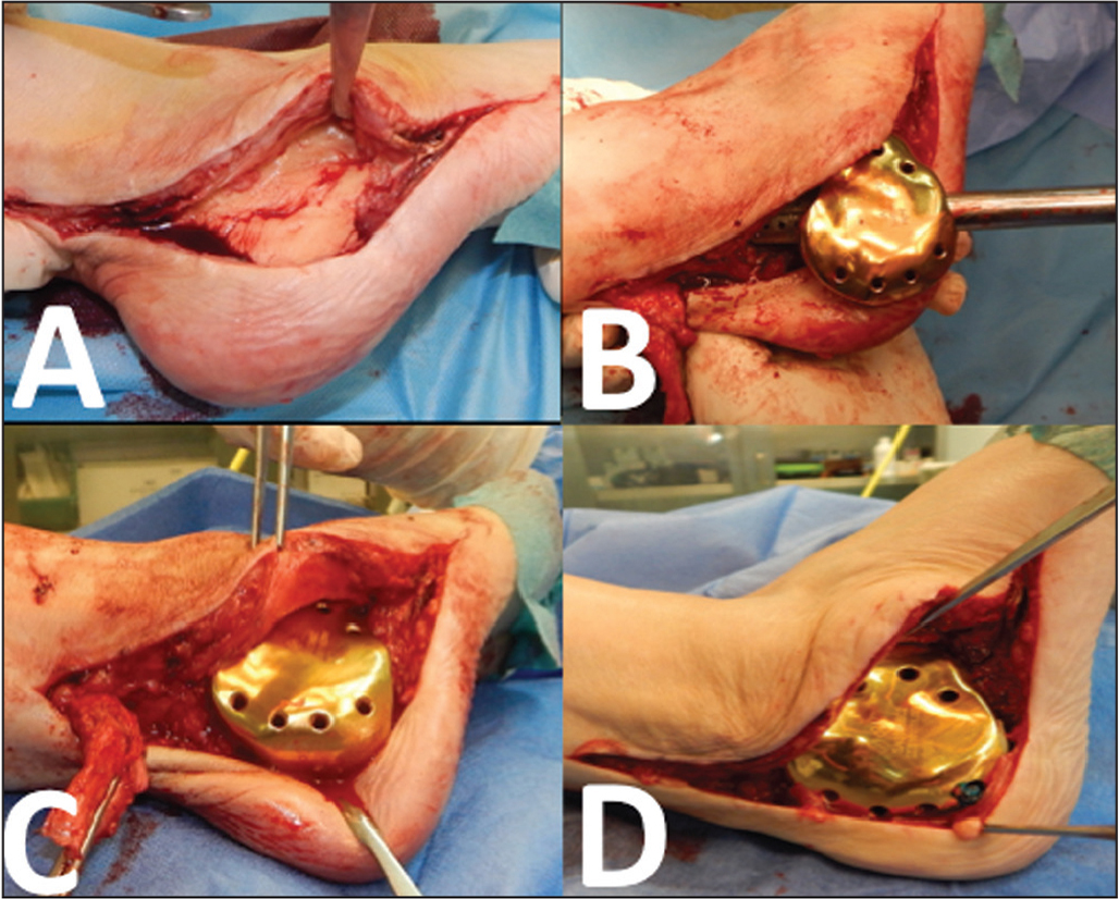Removal of the bone cement spacer through the previous incision (A); fixation of the 3-dimensional printed calcaneus implant to the talus using a special impactor (B); and reattachment of the Achilles tendon to the calcaneus implant (C, D).