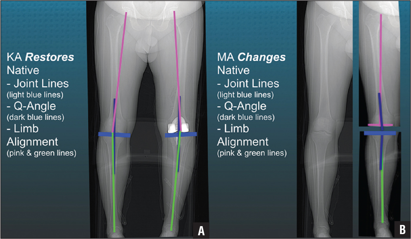 Composite of a patient with a constitutional varus limb (A) showing that calipered kinematic alignment (KA) restored the native joint lines (light blue lines), Q-angle (dark blue lines), distal lateral femoral angle (pink lines), and proximal medial tibial angle (green lines) in the limb with the total knee arthroplasty without ligament release (B). Abbreviation: MA, mechanical alignment.