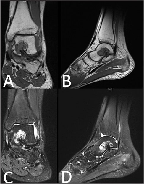 Preoperative T1-weighted coronal (A) and sagittal (B) magnetic resonance images depicting the hypointense lesion of the body of the talus. T2-weighted, fat-suppressed coronal (C) and sagittal (D) magnetic resonance images of the lesion.