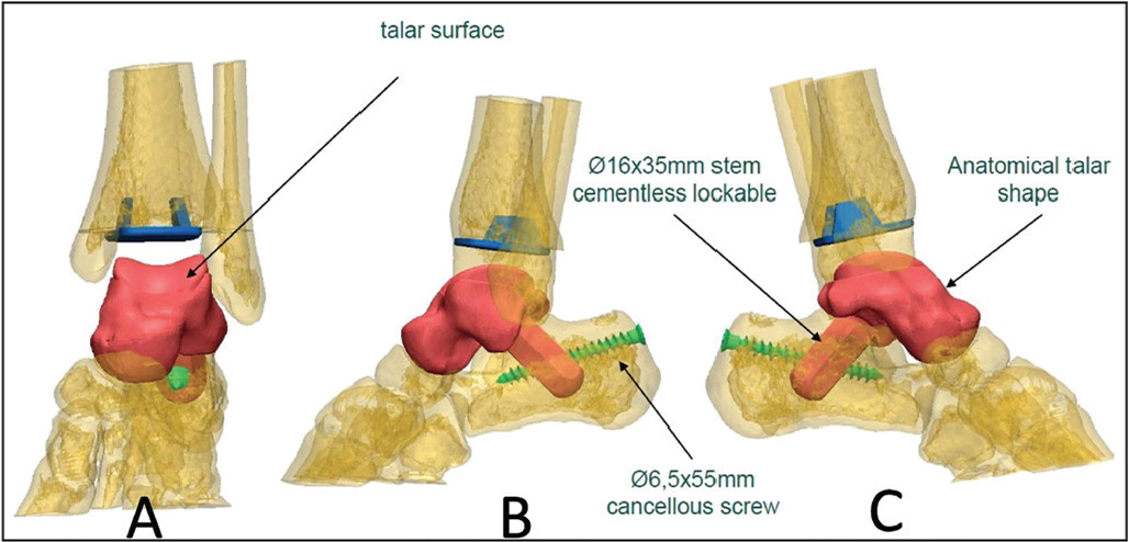 Front (A), medial (B), and lateral (C) views of the design of the prosthesis based on the preoperative computed tomography scans of the left foot.