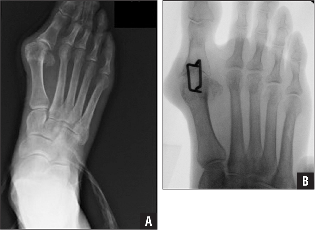 Anteroposterior radiographs: preoperative (A) and after staples fusion surgery (B).