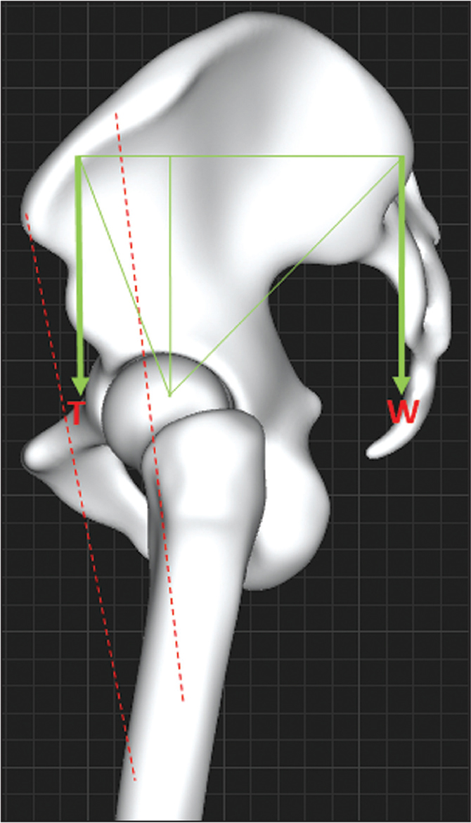 Free body lateral diagram of the pelvis during single leg stance shows that the body weight force vector (W) is posterior to the hip joint. The body weight force (W) is balanced by the tensor muscle (T), since it originates on the pelvis anterior to the hip joint.