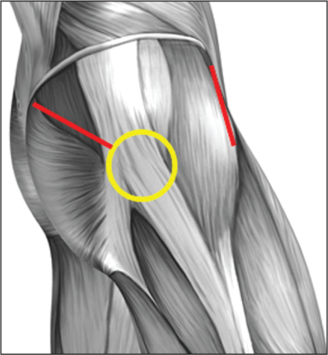 Lateral diagram of the hip showing the area of high compression between the iliotibial band and greater trochanter (yellow circle), as well as superficial muscle dissection for the 2-incision approach. Neither incision extends into the iliotibial band fascia.