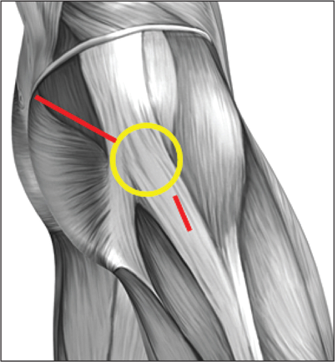 Lateral diagram of the hip showing the area of high compression between the iliotibial band and greater trochanter (yellow circle), as well as superficial muscle dissection for the percutaneous assisted total hip arthroplasty approach, which uses 2 incisions—1 proximal and 1 distal to the greater trochanter. Neither incision extends into the iliotibial band fascia.