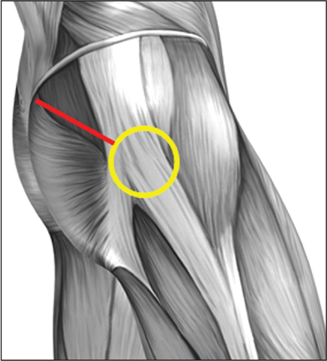 Lateral diagram of the hip showing the area of high compression between the iliotibial band and greater trochanter (yellow circle), as well as superficial muscle dissection for the direct superior approach. A single incision is used, proximal to the greater trochanter, and does not extend into the iliotibial band fascia.