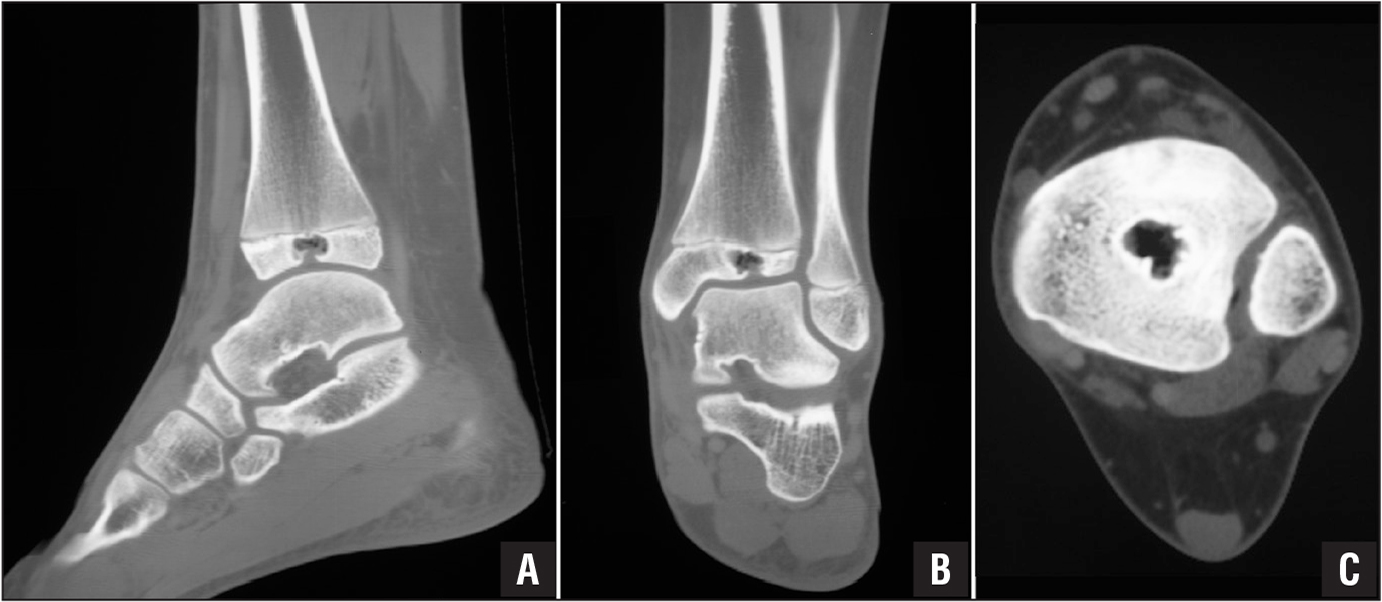 Computed tomography scans of the left ankle in sagittal (A), coronal (B), and axial (C) cuts delineating the well-circumscribed lytic lesion in the distal tibial epiphysis with erosion through the articular surface.