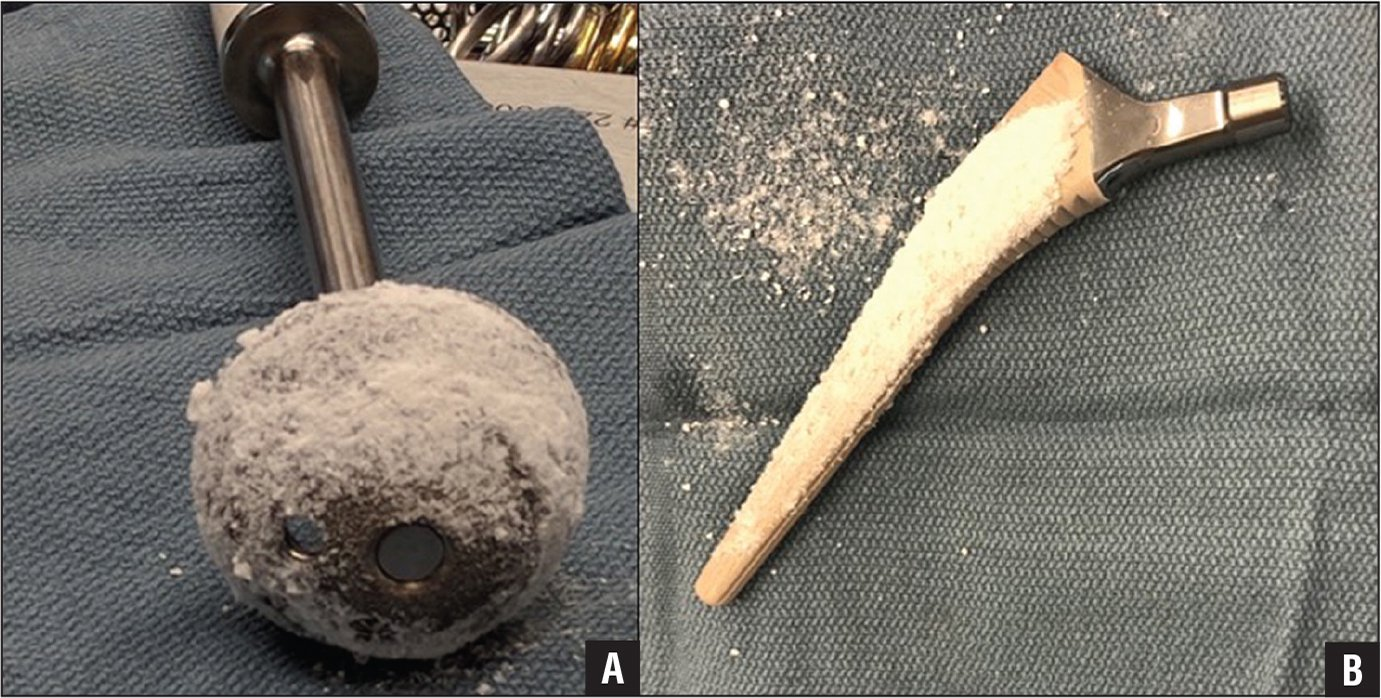 Both acetabular (A) and femoral (B) components were dipped in sterile saline, coated with a thin layer of topical vancomycin powder by hand, and then implanted.