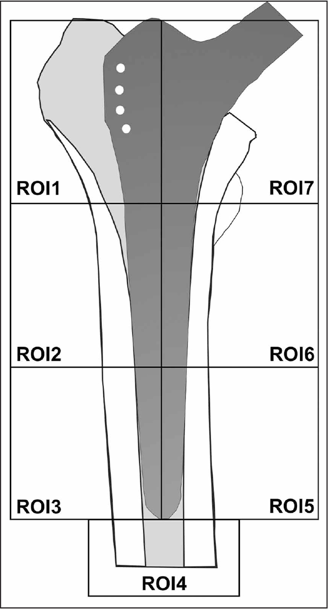 Regions of interest (ROI) used to measure bone mineral density around the femoral component according to Gruen's zones.