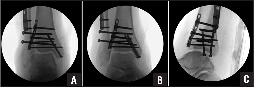 Case 1. Anteriposterior (A), mortise (B), and lateral (C) fluoroscopic views after syndesmotic screw placement showing concern for increased space in the superior joint (superior clear space) and asymmetry compared to the medial clear space, as well as anterior translation of the talus relative to the tibia.