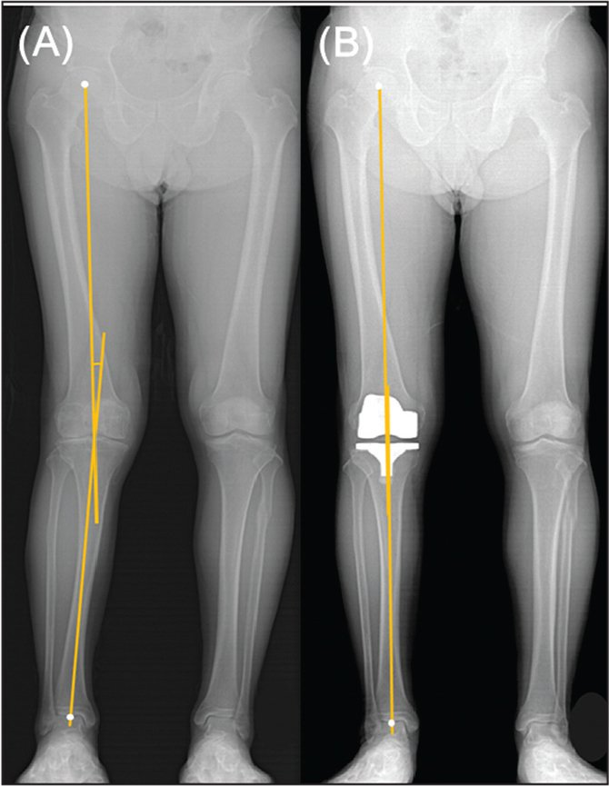 Measurement of lower limb mechanical axis preoperatively (A) and postoperatively (B).