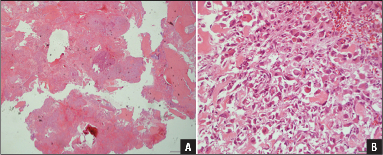 Specimens showing osteoblastoma (hematoxylin-eosin, original magnification ×4) (A) and osteoblastoma-like osteosarcoma (hematoxylin-eosin, original magnification ×10) (B).