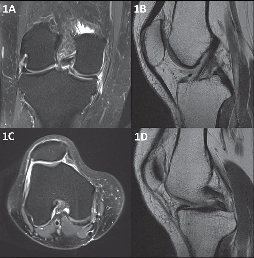 Preoperative coronal (A), sagittal (B, D), and axial (C) magnetic resonance images showing a posterior body/horn medial meniscus tear with mild knee degeneration. The sagittal images show the fat pad (B) and the meniscal pathology (D).