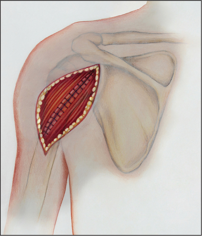 Repaired split deltoid. (Copyright Julie Ranels. Used with permission.)