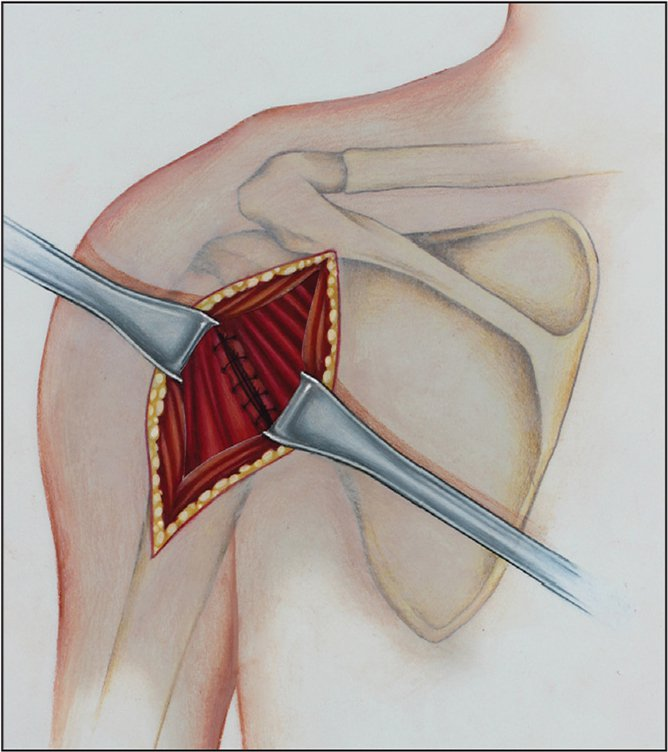 Repaired split rotator cuff. (Copyright Julie Ranels. Used with permission.)