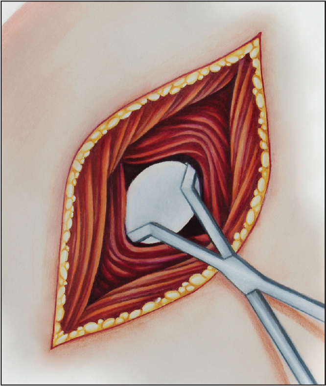 Placement of the glenoid. (Copyright Julie Ranels. Used with permission.)
