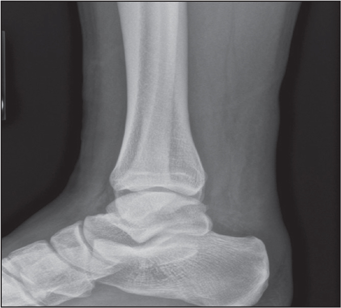 Lateral ankle radiograph showing obliteration of Kager's triangle secondary to Achilles tendon rupture.