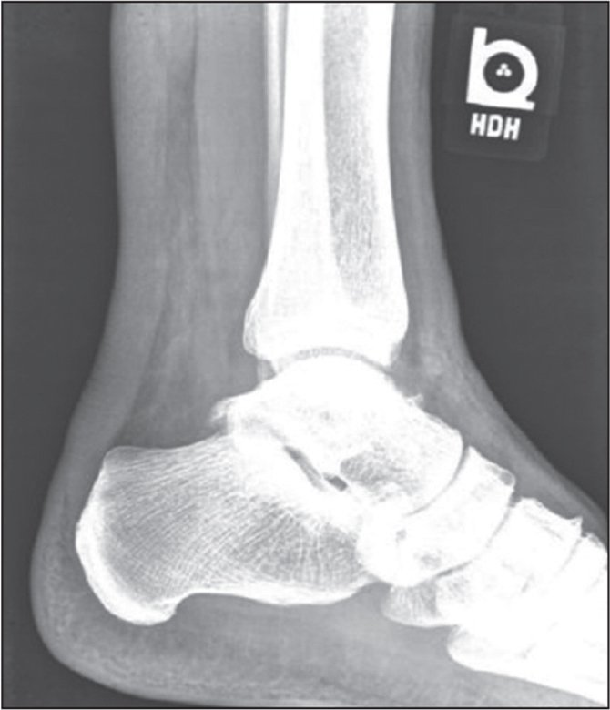 Lateral radiograph showing anterior deviation of the Achilles tendon, a phenomenon also known as Arner's sign.