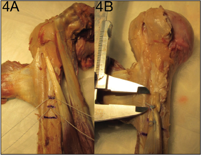 Photographs of single-loaded anchor fixation. Single-loaded anchors are placed 1 cm and 2 cm proximal to the inferior border of the pectoralis major insertion (A). Completed single-loaded all-suture anchor tenodesis with excision of the excess long head of the biceps tendon 1 cm proximal to fixation (B).