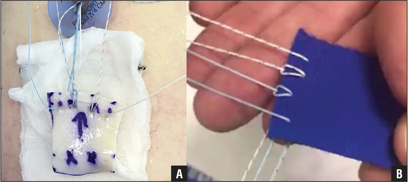 Clinical (A) and model (B) photographs illustrating the modified glenoid fixation technique.