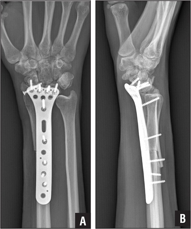 Anteroposterior (A) and lateral (B) radiographs of the distal radius after resection and allograft arthrodesis.