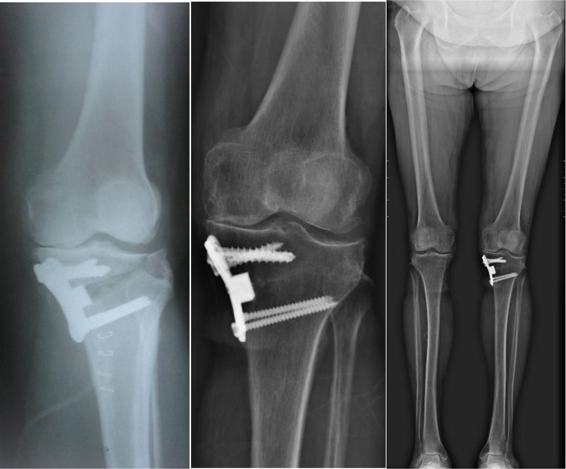 Radiographs and orthoroentgenograph of a patient with non-displaced LPF and conservative follow-up, early postoperative radiograph (Left), 13 years postoperative radiograph (Middle) and orthoroentgenograph (Right).